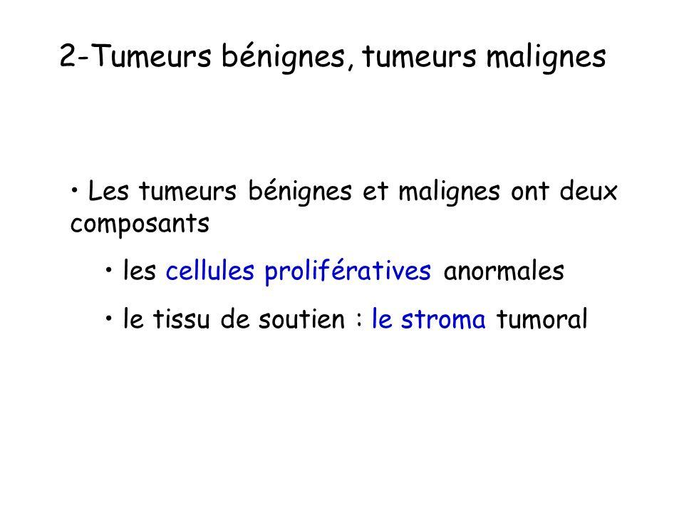 2-Tumeurs bénignes, tumeurs malignes Les tumeurs bénignes et malignes ont deux composants les cellules prolifératives anormales le tissu de soutien : le stroma tumoral