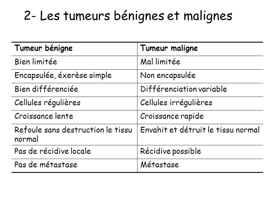 2-Tumeurs bénignes, tumeurs malignes Les tumeurs bénignes et malignes ont deux composants les cellules prolifératives anormales le tissu de soutien :