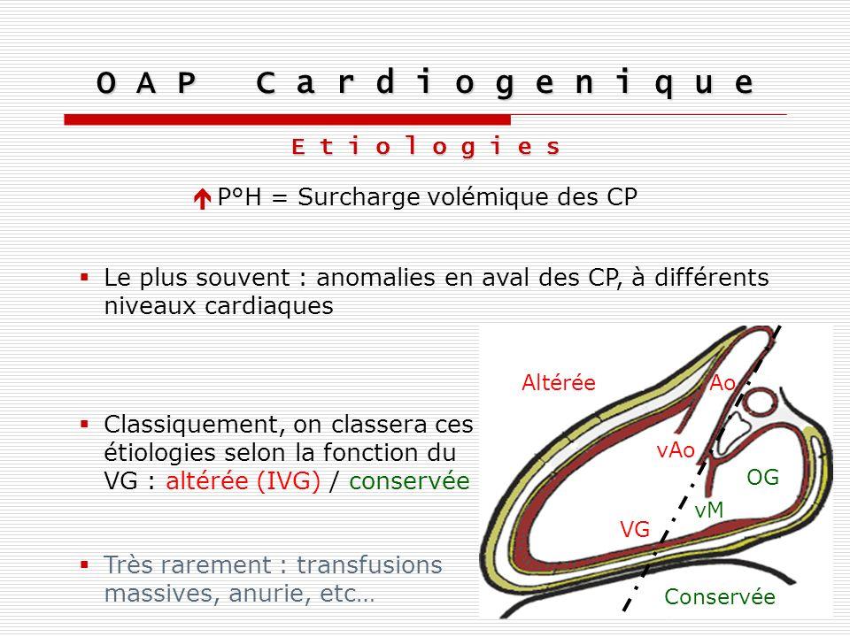 Très rarement : transfusions massives, anurie, etc… E t i o l o g i e s P°H = Surcharge volémique des CP Le plus souvent : anomalies en aval des CP, à