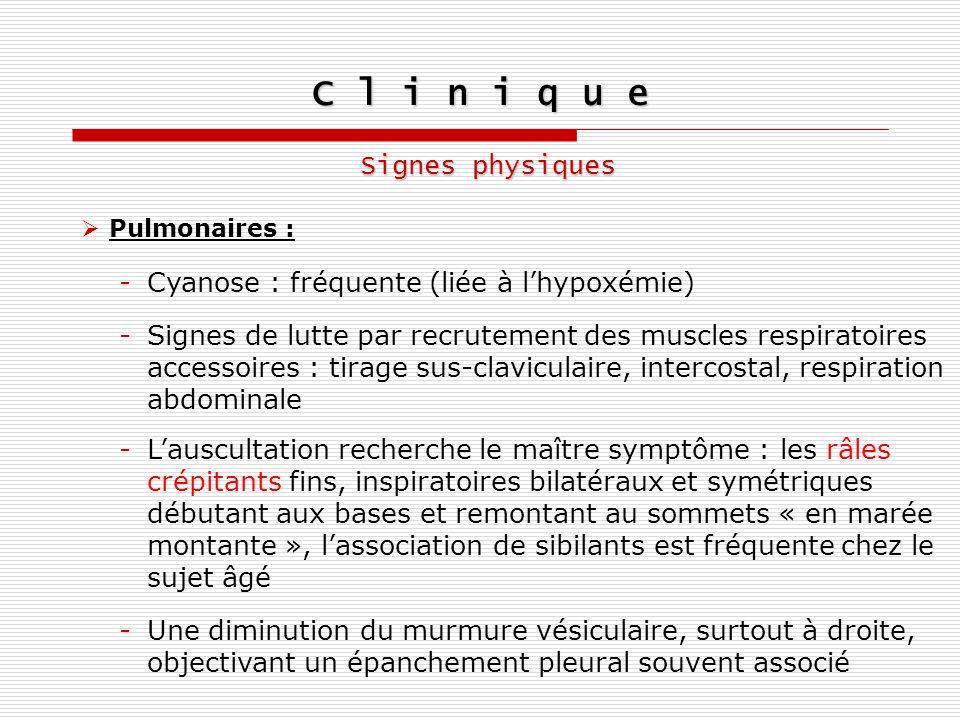C l i n i q u e Signes physiques Pulmonaires : -Cyanose : fréquente (liée à lhypoxémie) -Lauscultation recherche le maître symptôme : les râles crépit