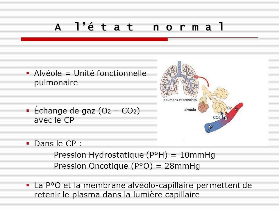 A lé t a t n o r m a l Alvéole = Unité fonctionnelle pulmonaire Échange de gaz (O 2 – CO 2 ) avec le CP Dans le CP : Pression Hydrostatique (P°H) = 10