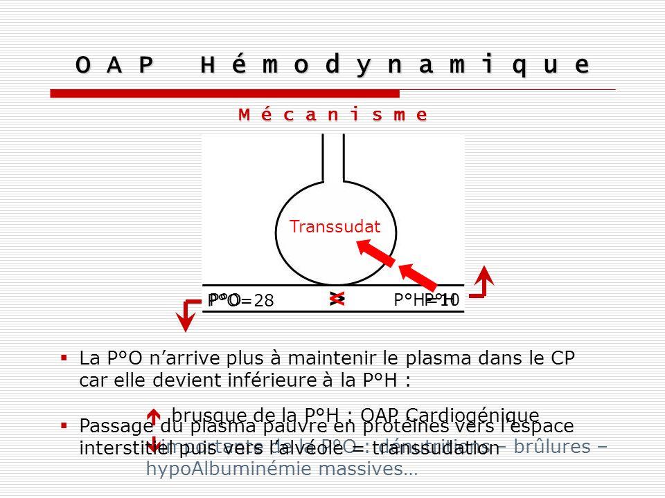 O A P H é m o d y n a m i q u e Principes du TRT P°H=10 P°O=28 P°H P°O < O2O2 Oxygénothérapie à fort débit P°H = Volémie x Résistances vasculaires La présence de plasma dans lalvéole gène la diffusion dO 2 DiurétiquesVasodilatateurs veineux >