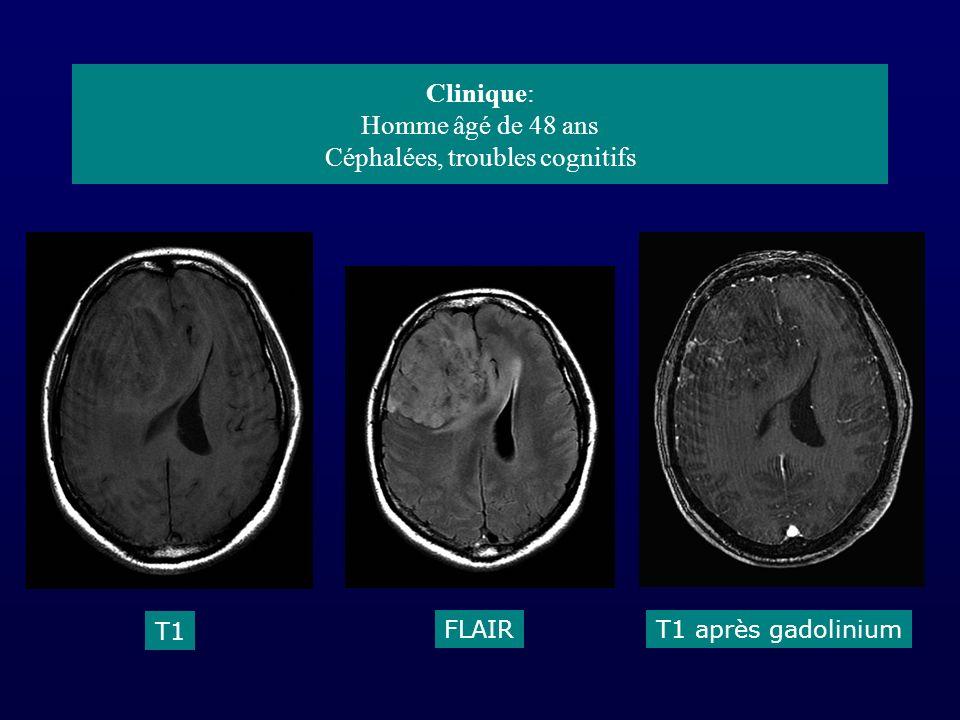 Clinique: Homme âgé de 48 ans Céphalées, troubles cognitifs T1 FLAIRT1 après gadolinium