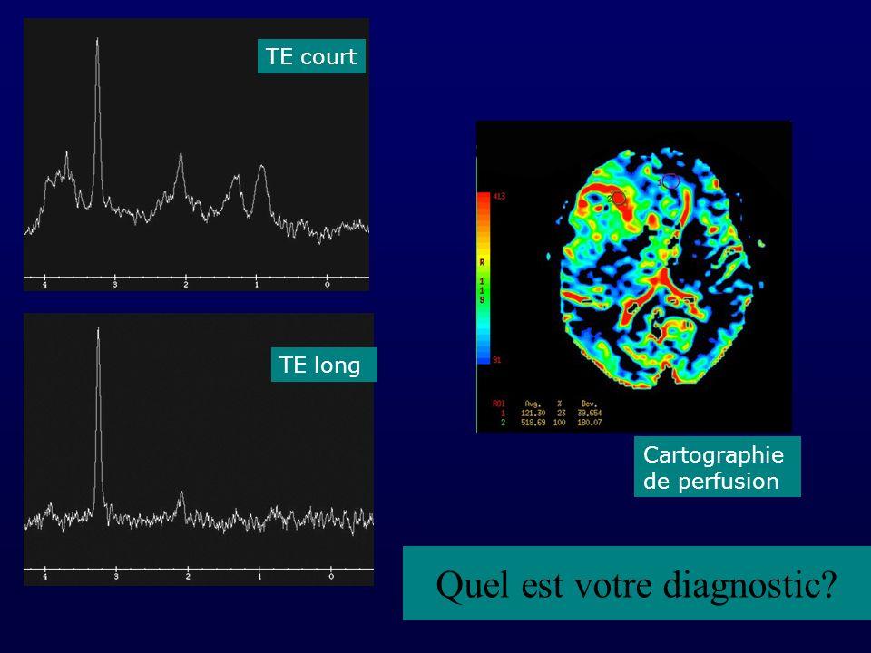 TE court TE long Cartographie de perfusion Quel est votre diagnostic?