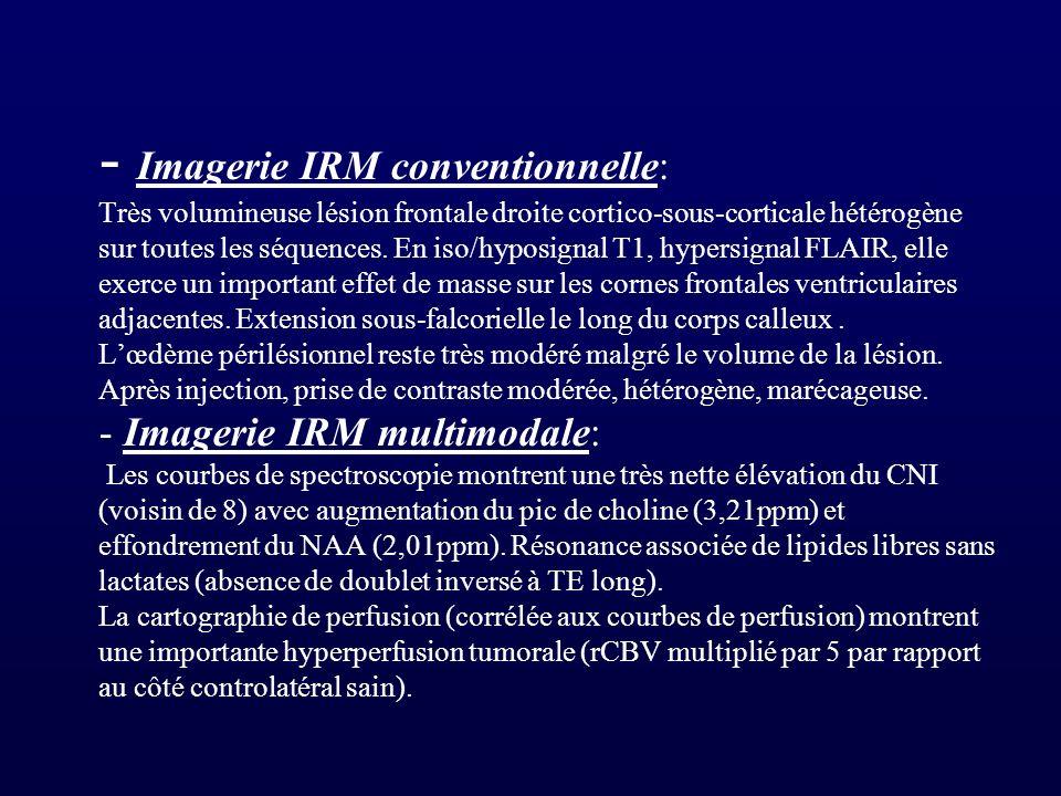 - Imagerie IRM conventionnelle: Très volumineuse lésion frontale droite cortico-sous-corticale hétérogène sur toutes les séquences. En iso/hyposignal