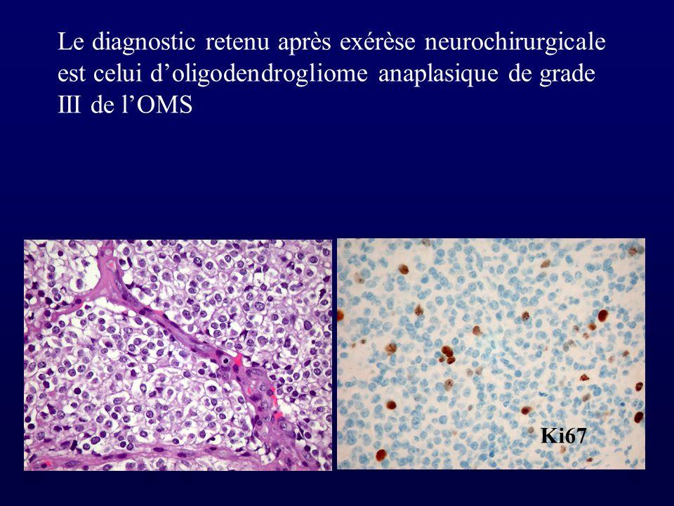 Le diagnostic retenu après exérèse neurochirurgicale est celui doligodendrogliome anaplasique de grade III de lOMS Ki67