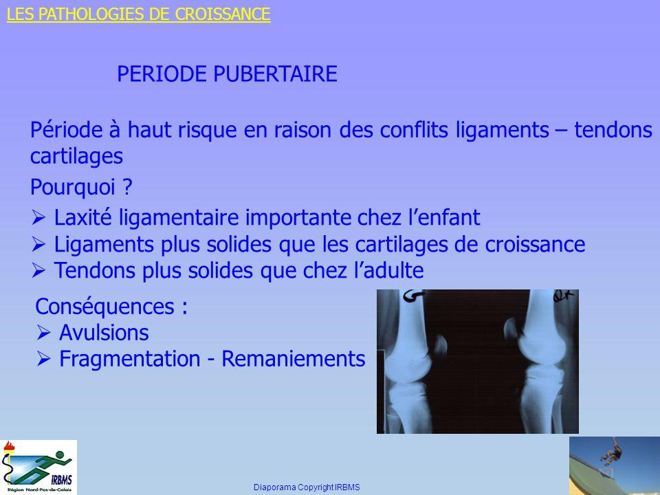 PERIODE PUBERTAIRE Période à haut risque en raison des conflits ligaments – tendons cartilages Pourquoi ? Laxité ligamentaire importante chez lenfant
