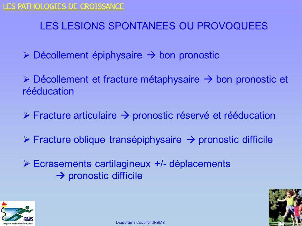 Décollement épiphysaire bon pronostic Décollement et fracture métaphysaire bon pronostic et rééducation Fracture articulaire pronostic réservé et rééd