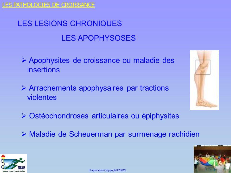 LES APOPHYSOSES Apophysites de croissance ou maladie des insertions Arrachements apophysaires par tractions violentes Ostéochondroses articulaires ou