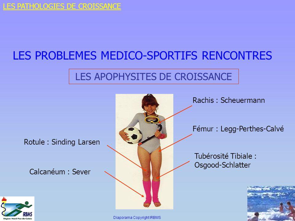 LES PROBLEMES MEDICO-SPORTIFS RENCONTRES LES APOPHYSITES DE CROISSANCE Rotule : Sinding Larsen Fémur : Legg-Perthes-Calvé Tubérosité Tibiale : Osgood-