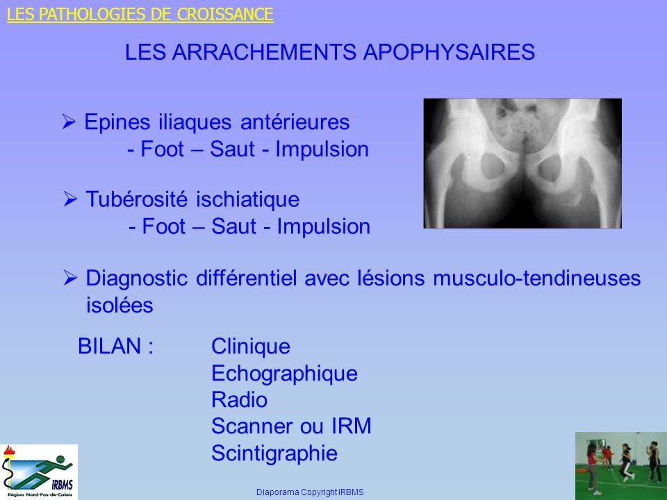 LES ARRACHEMENTS APOPHYSAIRES Epines iliaques antérieures - Foot – Saut - Impulsion Tubérosité ischiatique - Foot – Saut - Impulsion Diagnostic différ