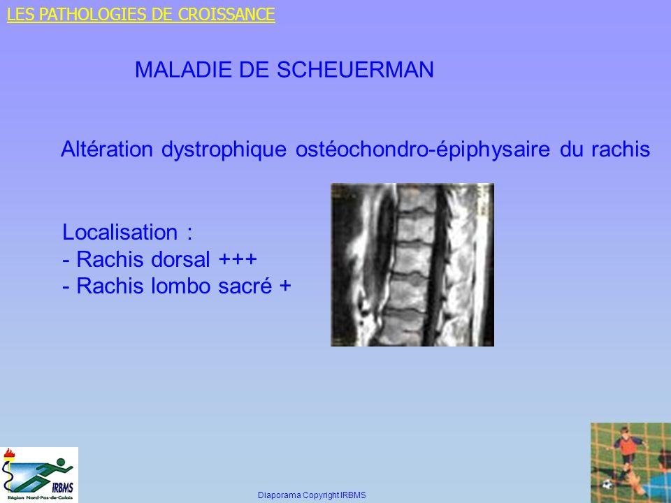 MALADIE DE SCHEUERMAN Altération dystrophique ostéochondro-épiphysaire du rachis Localisation : - Rachis dorsal +++ - Rachis lombo sacré + LES PATHOLO