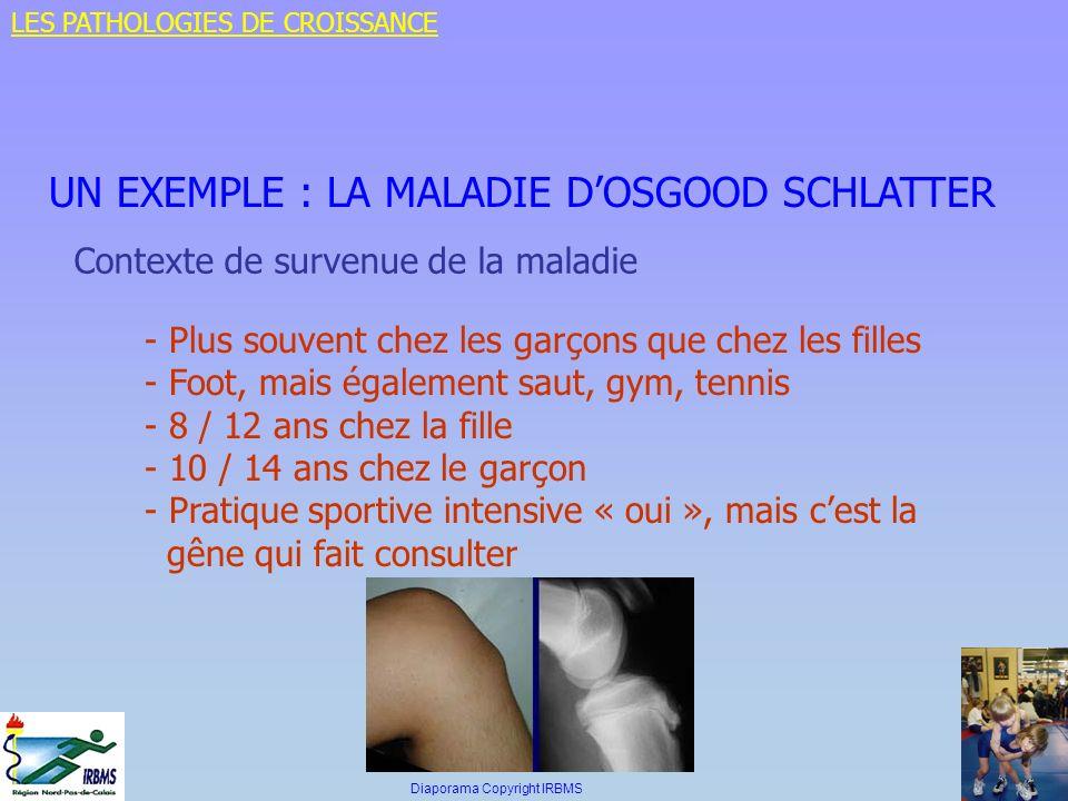 UN EXEMPLE : LA MALADIE DOSGOOD SCHLATTER Contexte de survenue de la maladie - Plus souvent chez les garçons que chez les filles - Foot, mais égalemen