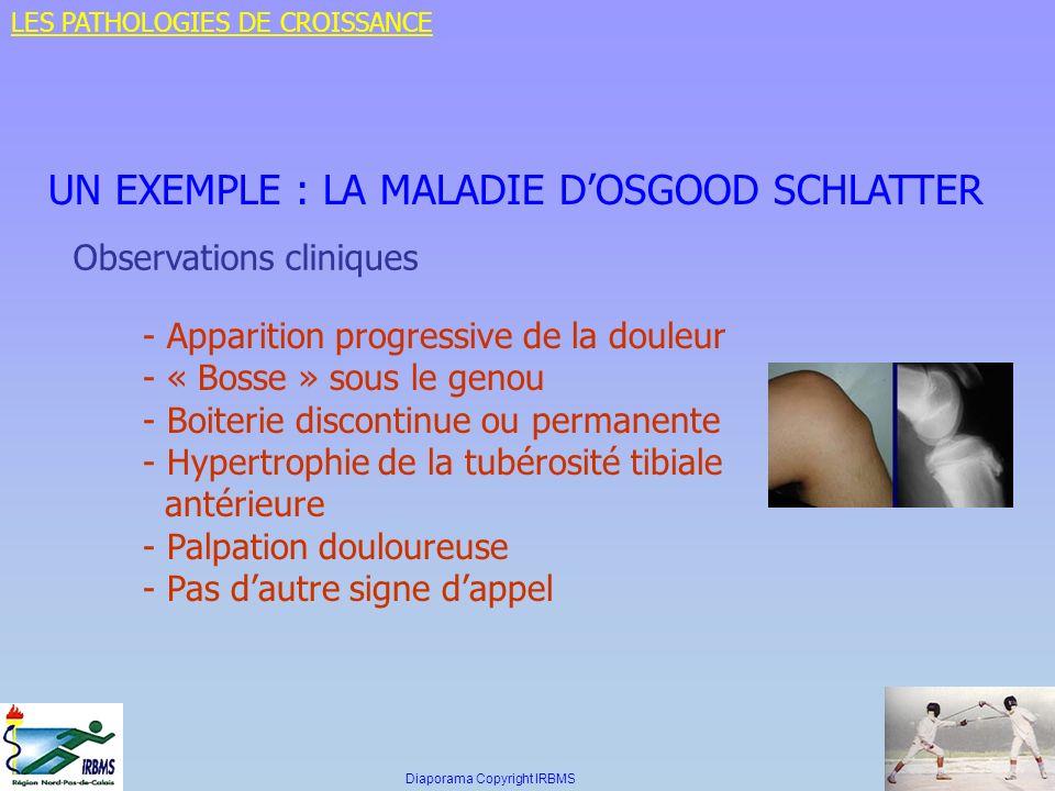 UN EXEMPLE : LA MALADIE DOSGOOD SCHLATTER Observations cliniques - Apparition progressive de la douleur - « Bosse » sous le genou - Boiterie discontin