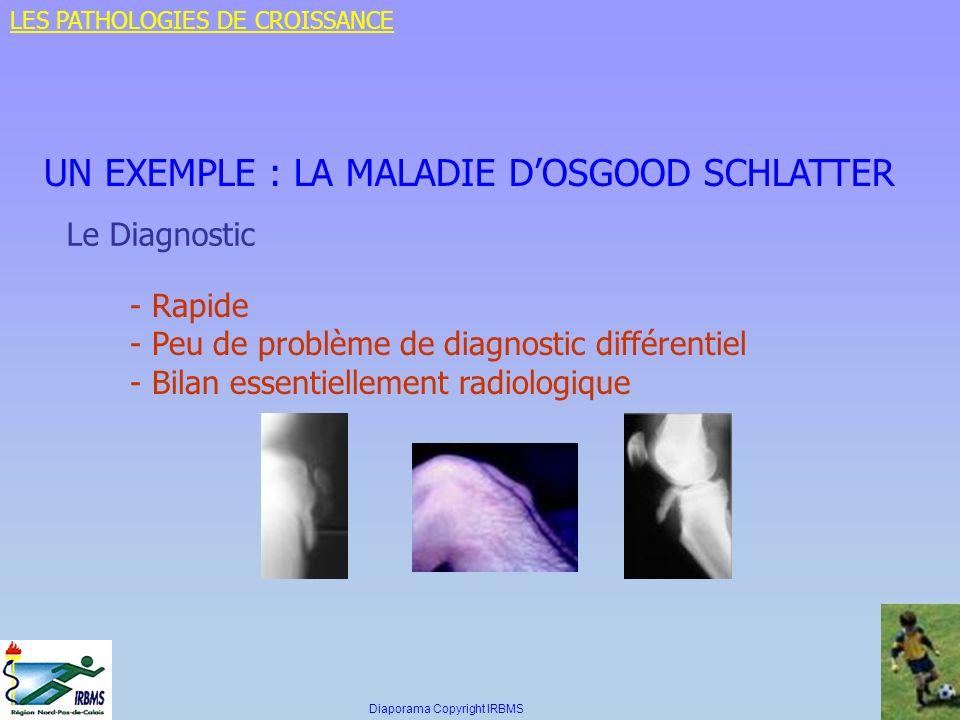 UN EXEMPLE : LA MALADIE DOSGOOD SCHLATTER Le Diagnostic - Rapide - Peu de problème de diagnostic différentiel - Bilan essentiellement radiologique LES