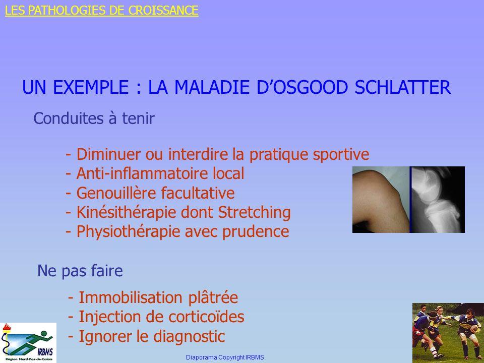 UN EXEMPLE : LA MALADIE DOSGOOD SCHLATTER Conduites à tenir - Diminuer ou interdire la pratique sportive - Anti-inflammatoire local - Genouillère facu