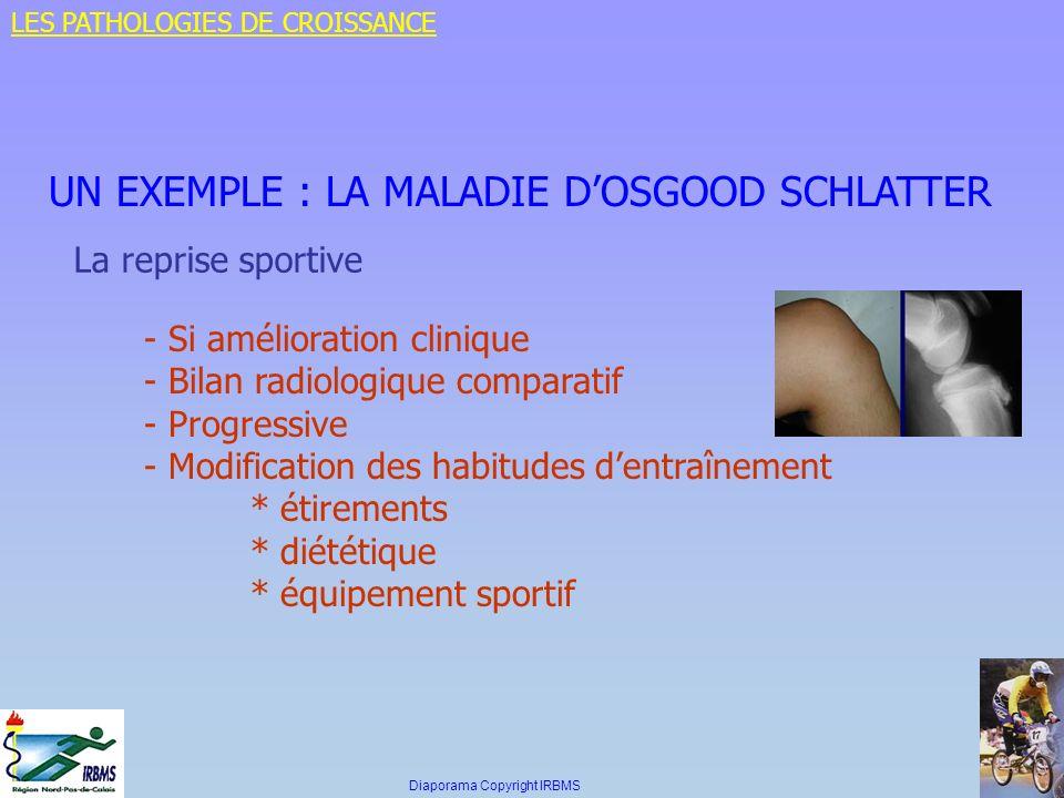 UN EXEMPLE : LA MALADIE DOSGOOD SCHLATTER La reprise sportive - Si amélioration clinique - Bilan radiologique comparatif - Progressive - Modification