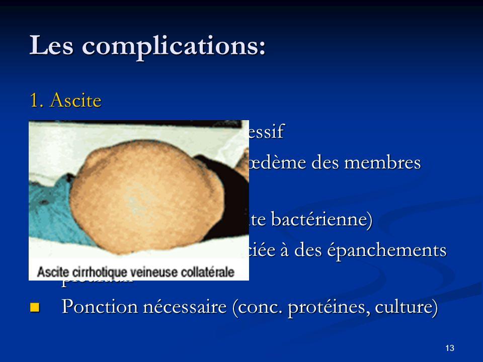 13 Les complications: 1. Ascite Développement progressif Développement progressif souvent associée à un œdème des membres inférieurs souvent associée