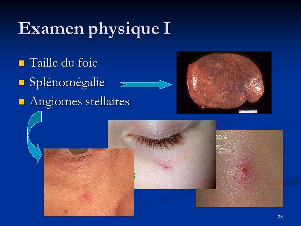 24 Examen physique I Taille du foie Taille du foie Splénomégalie Splénomégalie Angiomes stellaires Angiomes stellaires