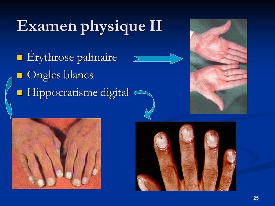 25 Examen physique II Érythrose palmaire Érythrose palmaire Ongles blancs Ongles blancs Hippocratisme digital Hippocratisme digital