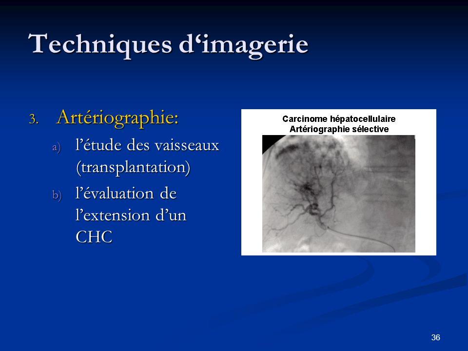 36 Techniques dimagerie 3. Artériographie: a) létude des vaisseaux (transplantation) b) lévaluation de lextension dun CHC