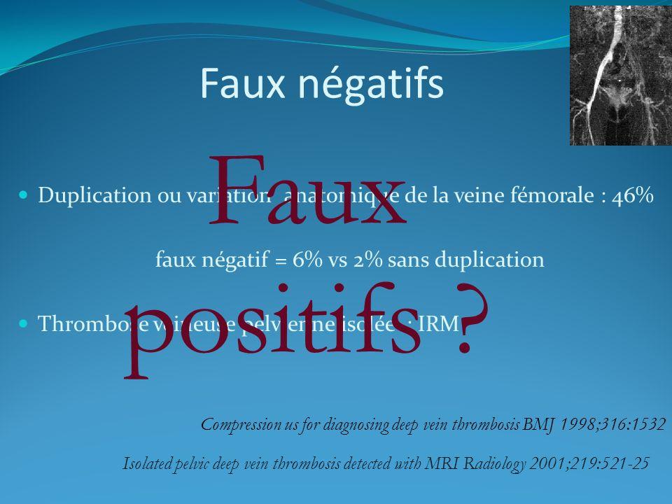 Faux négatifs Duplication ou variation anatomique de la veine fémorale : 46% faux négatif = 6% vs 2% sans duplication Thrombose veineuse pelvienne iso