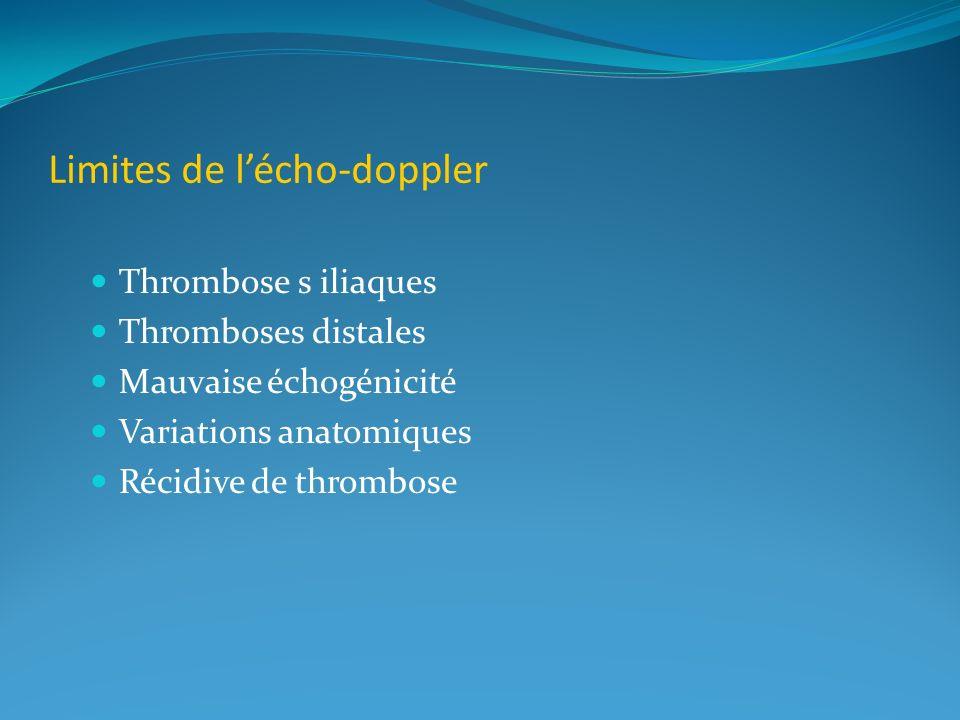 Limites de lécho-doppler Thrombose s iliaques Thromboses distales Mauvaise échogénicité Variations anatomiques Récidive de thrombose