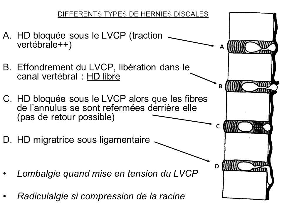 DIFFERENTS TYPES DE HERNIES DISCALES A.HD bloquée sous le LVCP (traction vertébrale++) B.Effondrement du LVCP, libération dans le canal vertébral : HD
