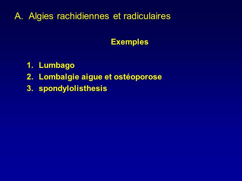 A.Algies rachidiennes et radiculaires Exemples 1.Lumbago 2.Lombalgie aigue et ostéoporose 3.spondylolisthesis