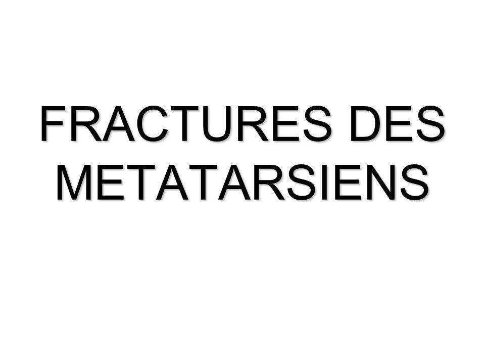 FRACTURES DES METATARSIENS