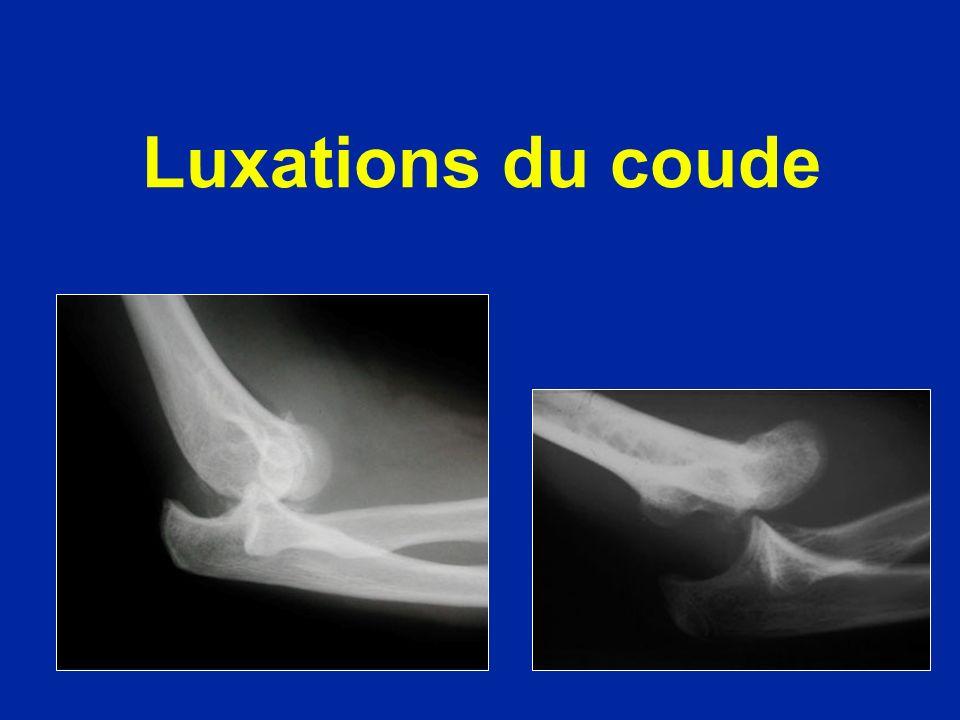 Fractures du col du radius de lenfant Déplacement en 4 stades Réduction possible par manoeuvres orthopédiques (plâtre 3 semaines) Au stade 4 : réduction chirurgicale et broche