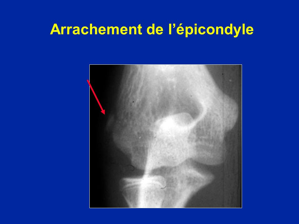 Arrachement de lépicondyle