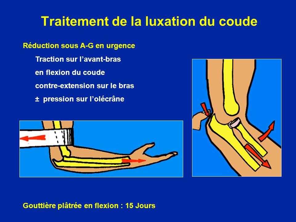 Traitement de la luxation du coude Réduction sous A-G en urgence Traction sur lavant-bras en flexion du coude contre-extension sur le bras ± pression