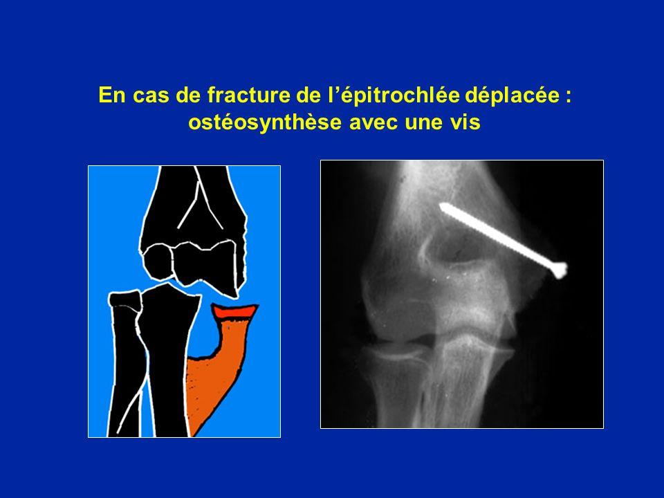 En cas de fracture de lépitrochlée déplacée : ostéosynthèse avec une vis