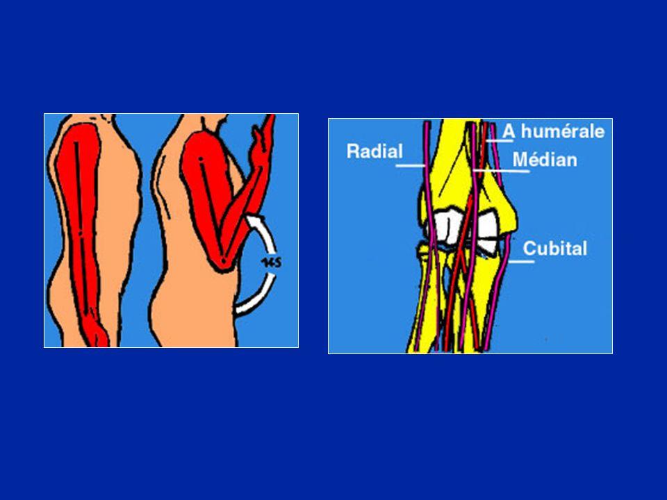 Luxation postérieure avec arrachements osseux au niveau de lépicondyle et de lépitrochlée