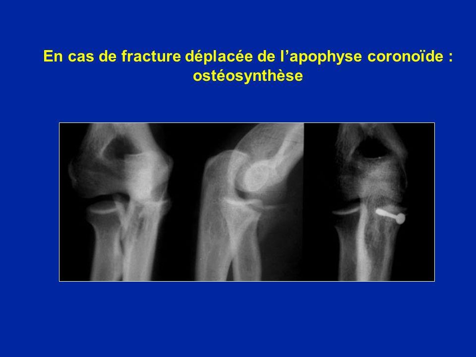 En cas de fracture déplacée de lapophyse coronoïde : ostéosynthèse
