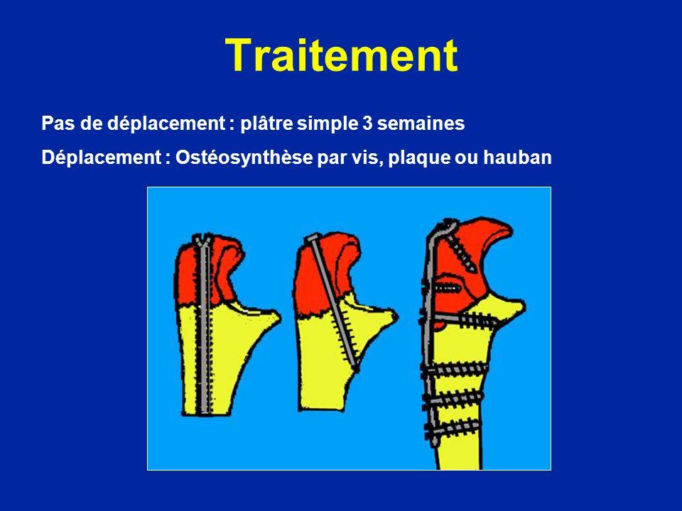 Traitement Pas de déplacement : plâtre simple 3 semaines Déplacement : Ostéosynthèse par vis, plaque ou hauban