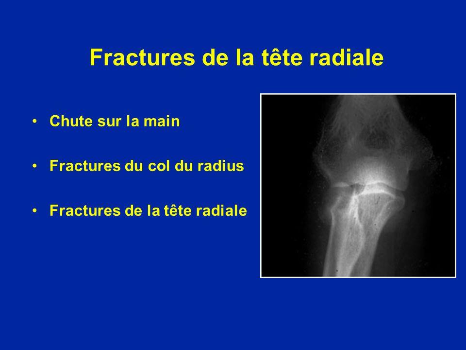 Chute sur la main Fractures du col du radius Fractures de la tête radiale