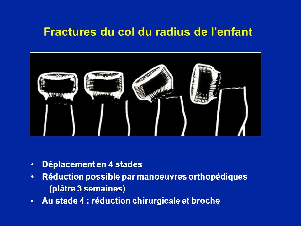 Fractures du col du radius de lenfant Déplacement en 4 stades Réduction possible par manoeuvres orthopédiques (plâtre 3 semaines) Au stade 4 : réducti