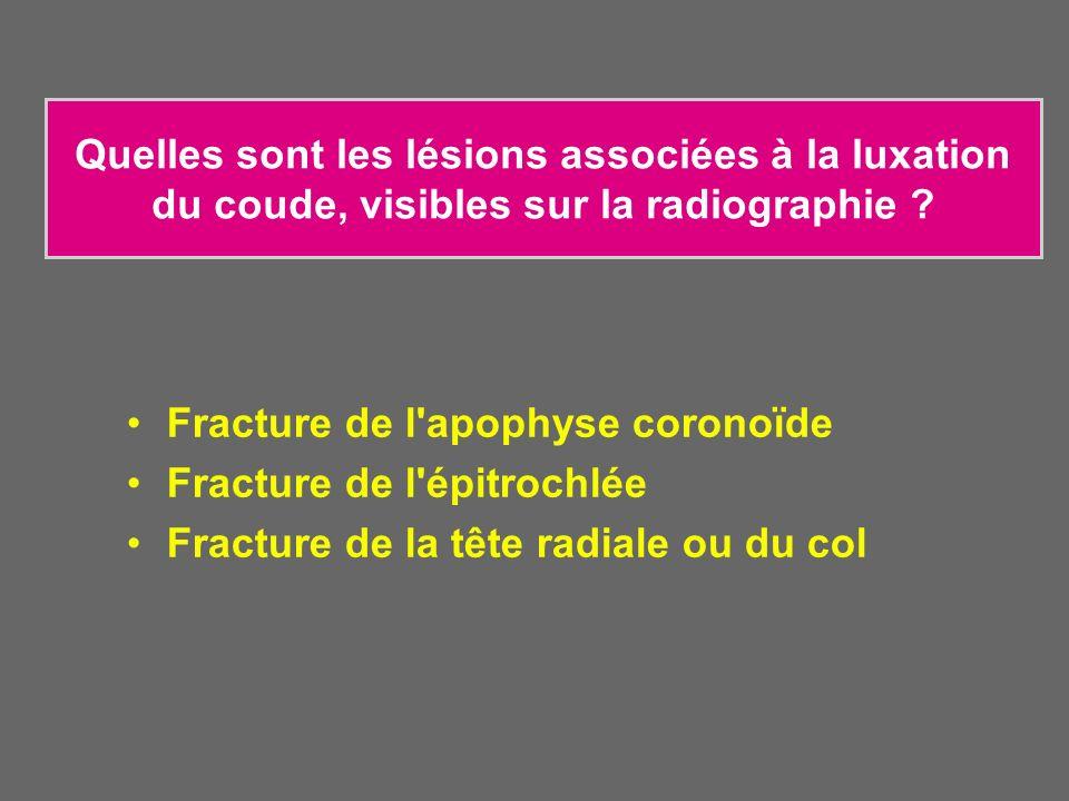 Quelles sont les lésions associées à la luxation du coude, visibles sur la radiographie ? Fracture de l'apophyse coronoïde Fracture de l'épitrochlée F