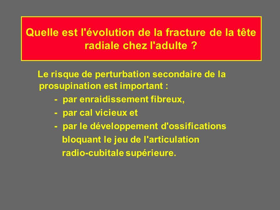Quelle est l'évolution de la fracture de la tête radiale chez l'adulte ? Le risque de perturbation secondaire de la prosupination est important : - pa