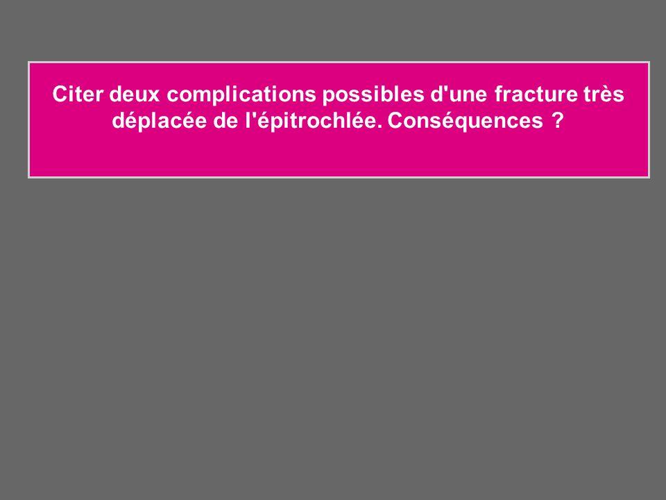 Citer deux complications possibles d'une fracture très déplacée de l'épitrochlée. Conséquences ?