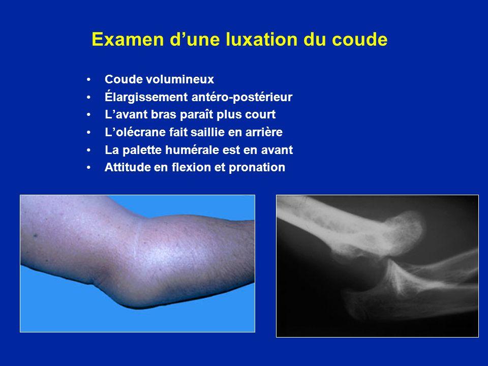 Examen dune luxation du coude Coude volumineux Élargissement antéro-postérieur Lavant bras paraît plus court Lolécrane fait saillie en arrière La pale