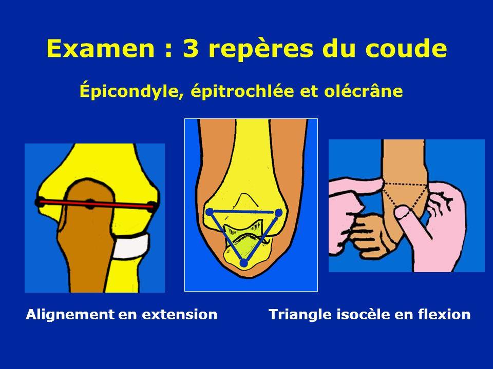 Examen : 3 repères du coude Alignement en extension Triangle isocèle en flexion Épicondyle, épitrochlée et olécrâne