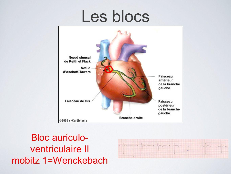 Les blocs Bloc auriculo- ventriculaire II mobitz 1=Wenckebach