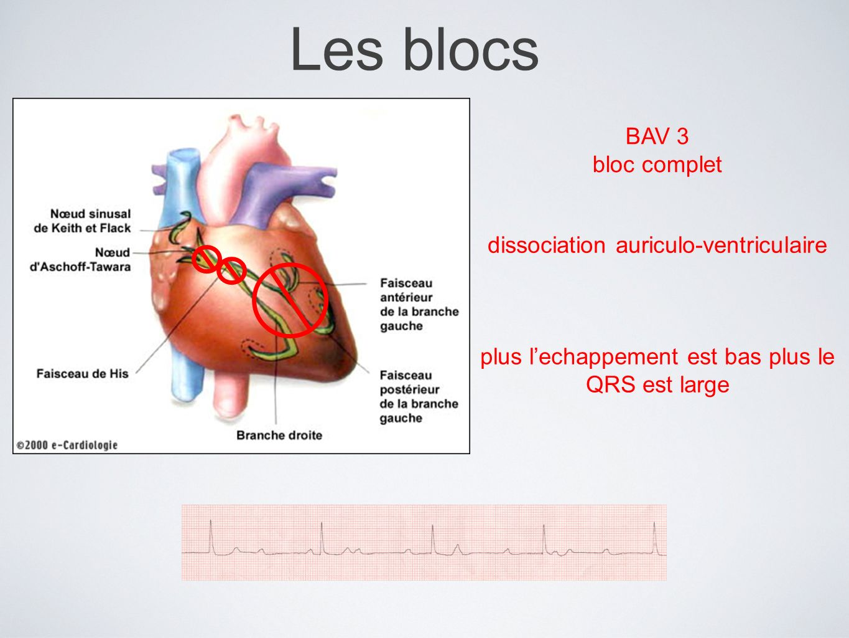Les blocs BAV 3 bloc complet dissociation auriculo-ventriculaire plus lechappement est bas plus le QRS est large