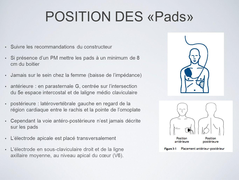 POSITION DES «Pads» Suivre les recommandations du constructeur Si présence dun PM mettre les pads à un minimum de 8 cm du boitier Jamais sur le sein c