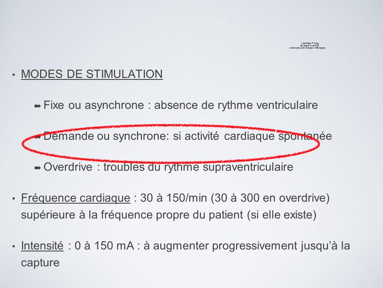 MODES DE STIMULATION Fixe ou asynchrone : absence de rythme ventriculaire Demande ou synchrone: si activité cardiaque spontanée Overdrive : troubles d