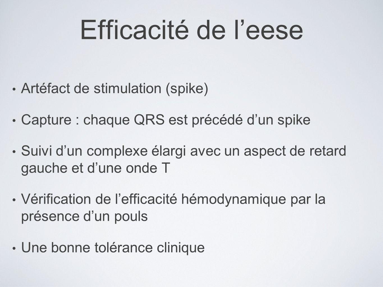 Efficacité de leese Artéfact de stimulation (spike) Capture : chaque QRS est précédé dun spike Suivi dun complexe élargi avec un aspect de retard gauc