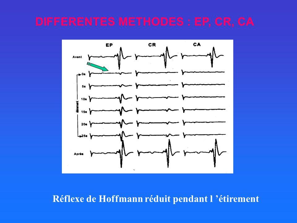 DIFFERENTES METHODES : EP, CR, CA Réflexe de Hoffmann réduit pendant l étirement
